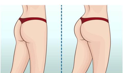お尻の筋肉をつけて、ある程度の脂肪で女性らしい丸みは残しつつ、太ももとの差をはっきりさせること が大切である説明のイラスト
